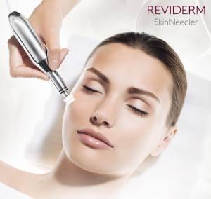 skin-needler-behandeling
